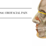 Chronic orofacial pain, donald tanenbaum,