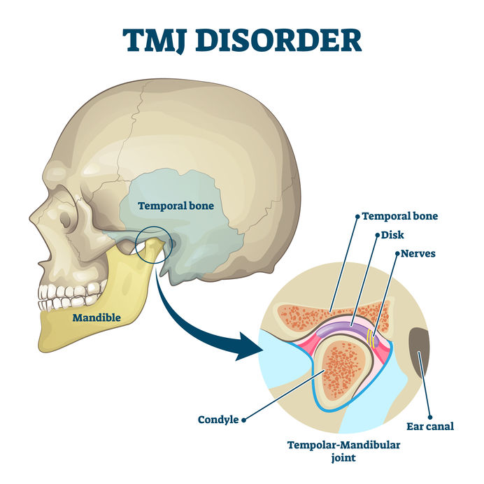 TMJ jaw disorder, TMJ jaw problems